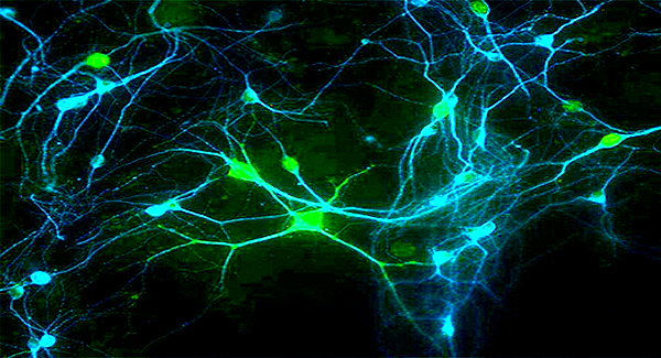 neuroscience and its impact on education